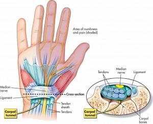 Karpaalkanali massaaž op´ita terveks